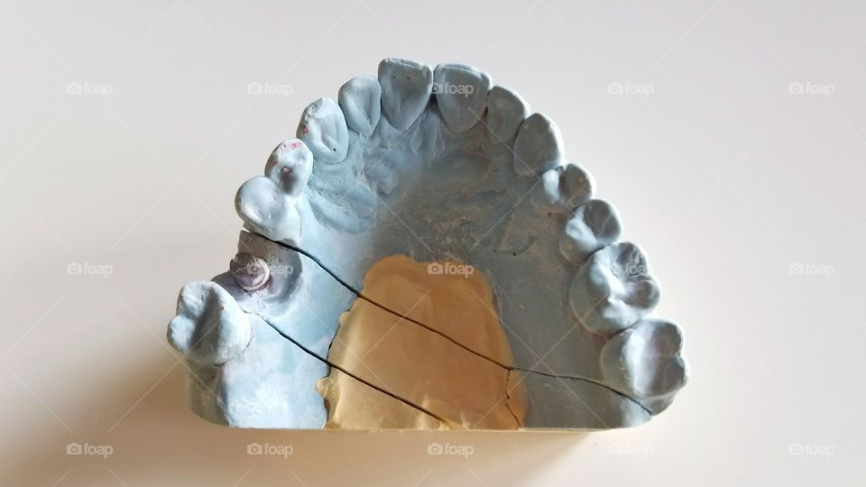 Blue dental teeth impressions